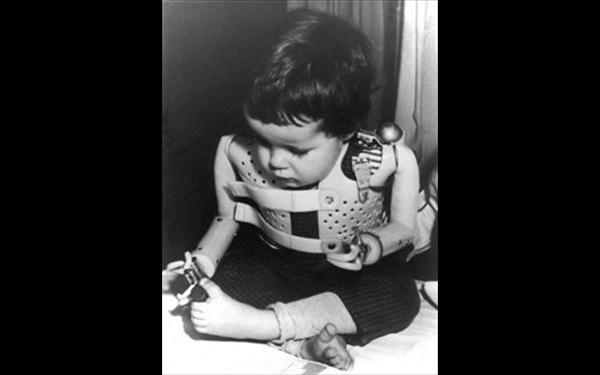 Το φάρμακο που ΠΑΡΑΜΟΡΦΩΣΕ 10.000 Παιδιά!