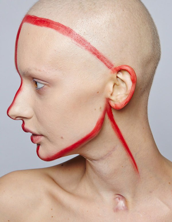 jaw-cancer-model-19 (1)