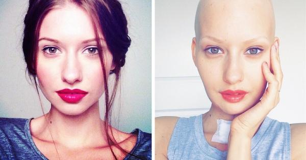 jaw-cancer-model-fb