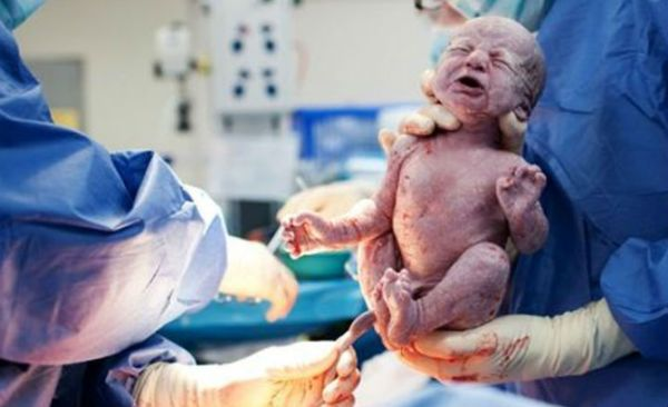 Baby-In-Forced-Cesarean